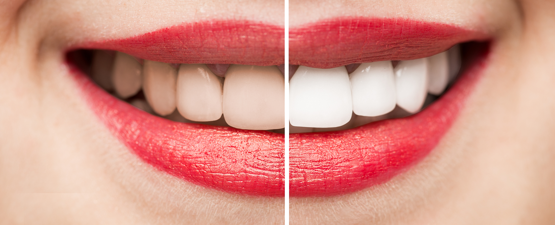 הלבנת שיניים תוך שעה